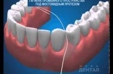 Embedded thumbnail for  Гигиена мостовидных протезов