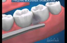 Embedded thumbnail for  Гигиена межзубных промежутков